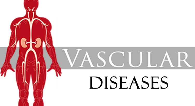 Vascular Diseases-You should Know
