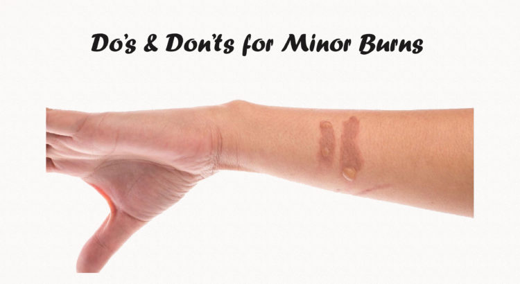 Minor burn care Do's and Don'ts